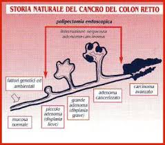 storia naturale tumore del colon